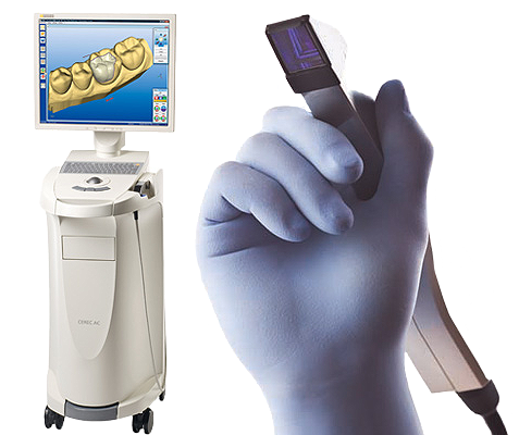 cerec_wand